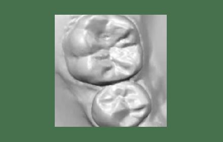 アイテロによる歯型取り
